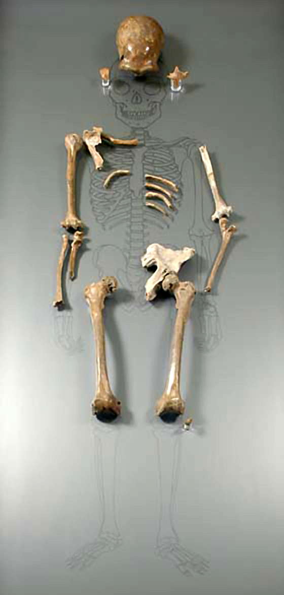 The Original Neanderthal Skeleton From The Neander Valley
